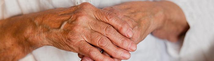cbd arthritis